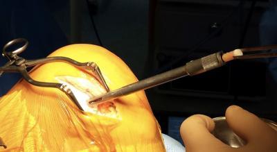 La greffe de cartilage articulaire du genou: Pour qui? Comment? Quels résultats?