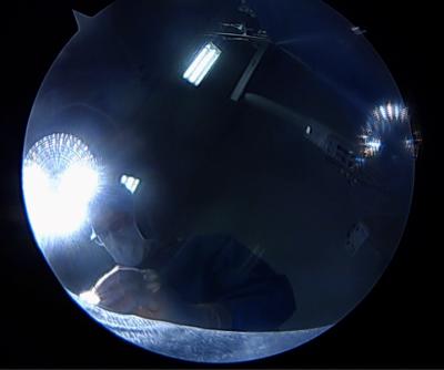 Ligamentoplastie du LCA par greffe au Tendon Quadricipital à Lyon, par Dr Cognault