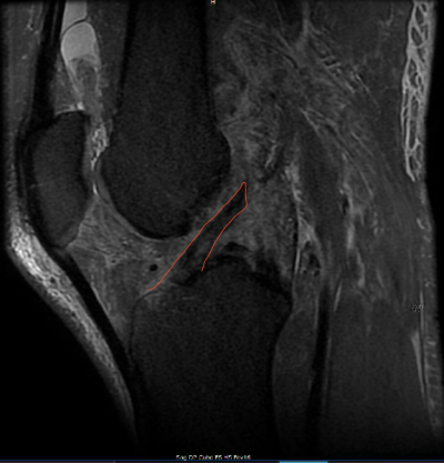 Réparation du Ligament Croisé Antérieur: Rêve ou Réalité?