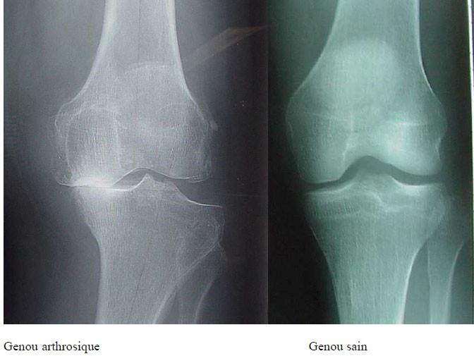 proth se du genou lyon chirurgie implant prothese totale du genou. Black Bedroom Furniture Sets. Home Design Ideas